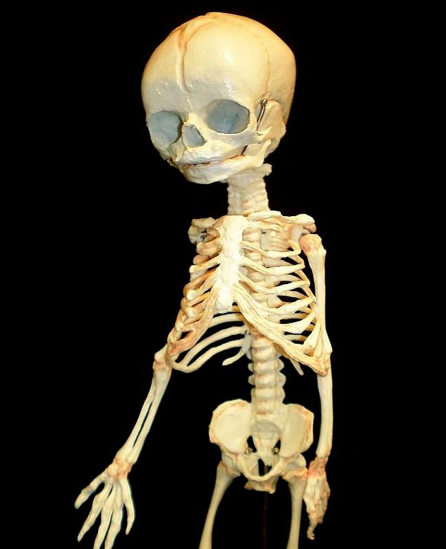 Skeleton Store