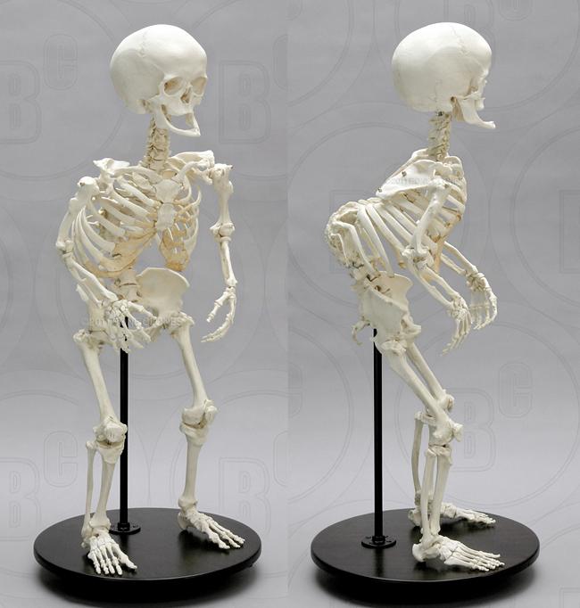 Bone Clones